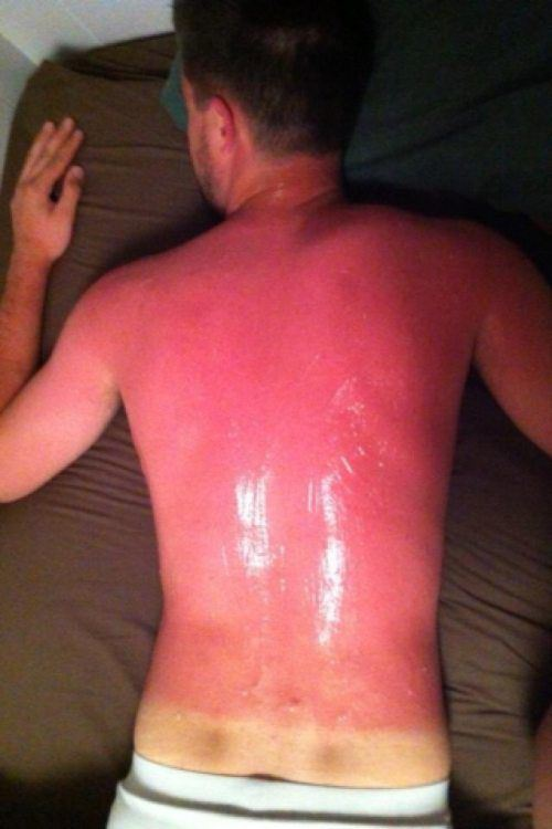 how to make a sunburn tan overnight